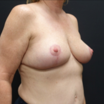 55-64 year old woman treated with Breast Lift after 3130103