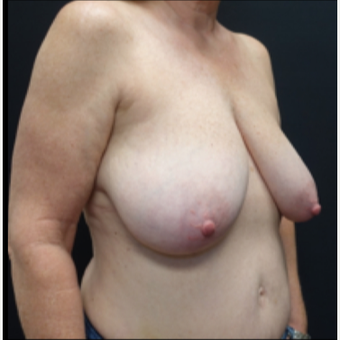55-64 year old woman treated with Breast Lift before 3130103