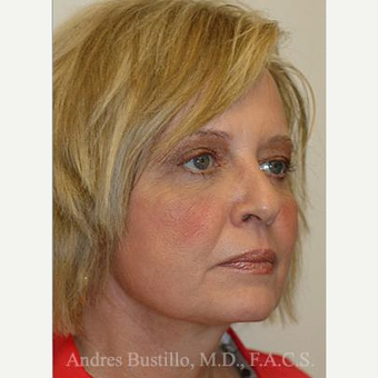 60 year old woman treated with Facelift after 3486297