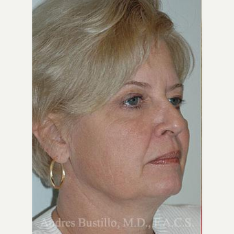 60 year old woman treated with Facelift before 3486297