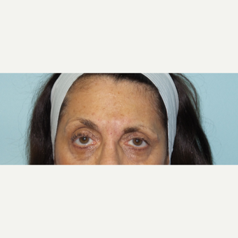 65-74 year old woman treated with Botox and Restylane after 2718218
