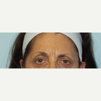 65-74 year old woman treated with Botox and Restylane before 2718218
