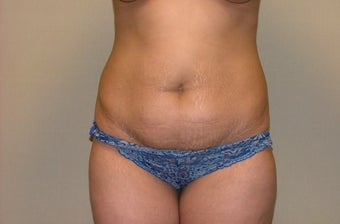 Abdominoplasty before 675854