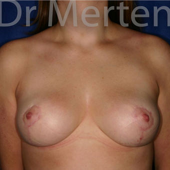 Breast Reduction after 3681339