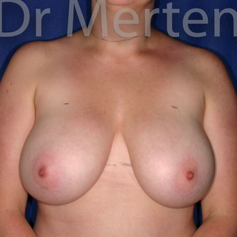 Breast Reduction before 3681339