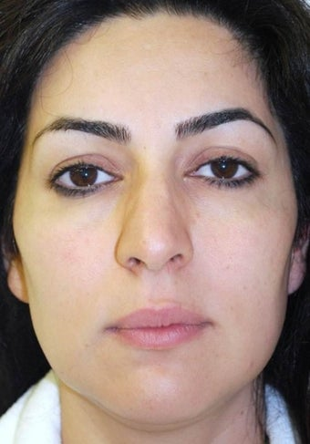35-44 year old woman treated with Rhinoplasty before 1561446