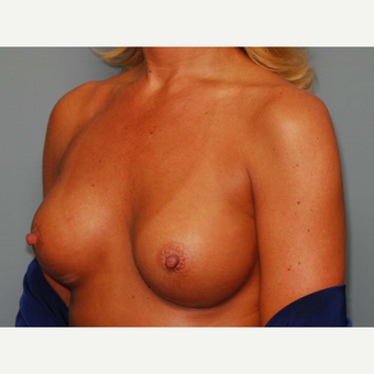 42 y/o Inframammary Sub Muscular Breast Augmentation after 3066124