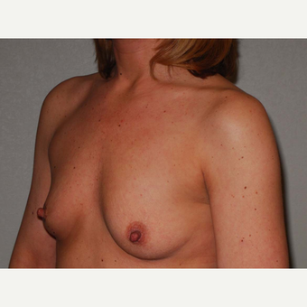 42 y/o Inframammary Sub Muscular Breast Augmentation before 3066124