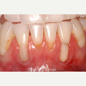 45-54 year old woman treated for Gum Recession before 2953067