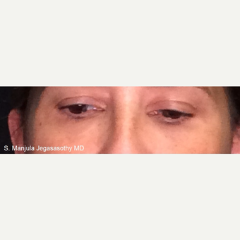 Non-Surgically Shrinking Undereye Fat Pads with Kybella® Injections after 3621624