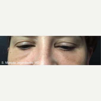 Non-Surgically Shrinking Undereye Fat Pads with Kybella® Injections before 3621624