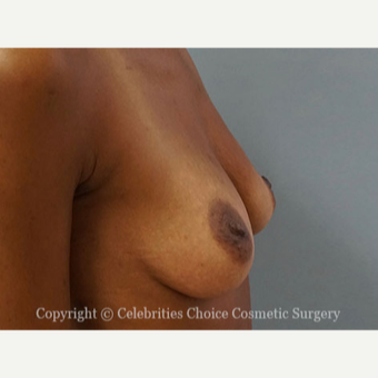 25-34 year old woman treated with Breast Augmentation before 3853561