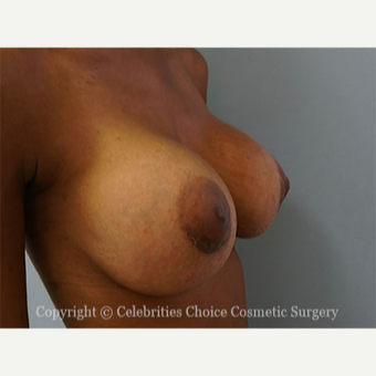 25-34 year old woman treated with Breast Augmentation after 3853561