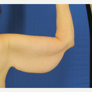 45-54 year old woman treated with Arm Lift before 3748314