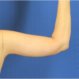 45-54 year old woman treated with Arm Lift after 3748314