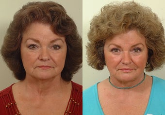 Lower facelift and eyelids before 120220
