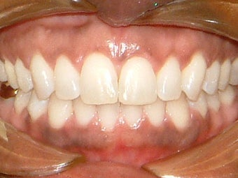 Spaces between the front teeth after 930855