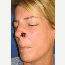 45-54 year old woman treated with Mohs Surgery before 3389182