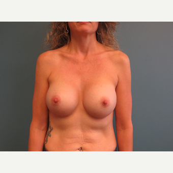 45-54 year old woman treated with Breast Implants after 3725566