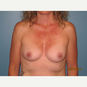 45-54 year old woman treated with Breast Implants before 3725566