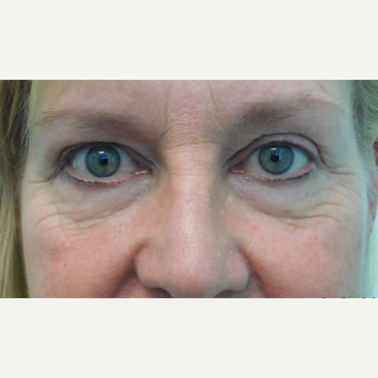55-64 year old woman treated with Fractional Laser and Fat Transfer before 3670762