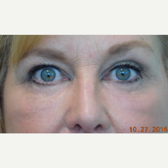55-64 year old woman treated with Fractional Laser and Fat Transfer after 3670762