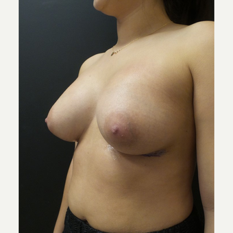 25-34 year old woman treated with Breast Augmentation after 3566221