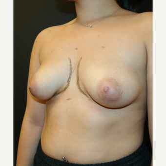 25-34 year old woman treated with Breast Augmentation before 3566221