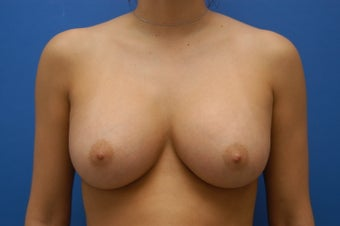 Breast Augmentation - Saline Breast Implants after 53593