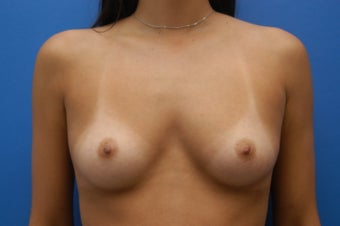 Breast Augmentation - Saline Breast Implants before 53593