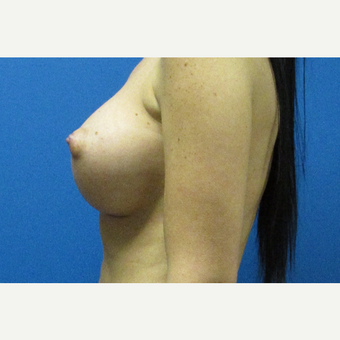 400cc silicone breast implants after 3697323