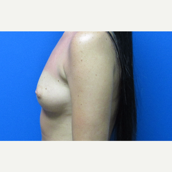 400cc silicone breast implants before 3697323