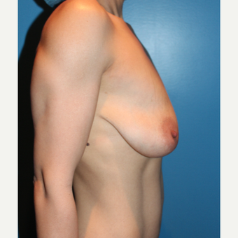 35-44 year old woman treated with Breast Lift with Implants before 3838593