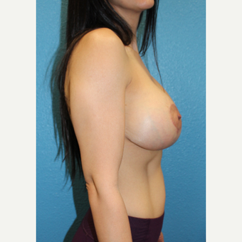 35-44 year old woman treated with Breast Lift with Implants after 3838593