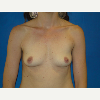 35-44 year old woman treated with Breast Implants before 3495786