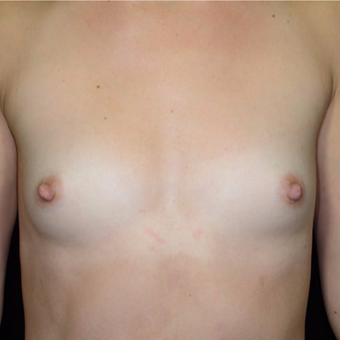 25-34 year old woman treated with Breast Augmentation before 3099236