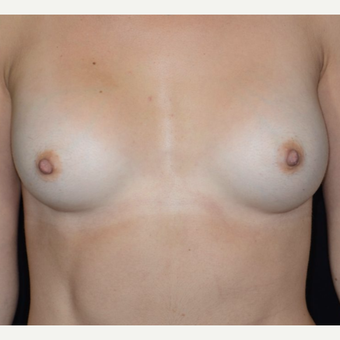 25-34 year old woman treated with Breast Augmentation after 3099236