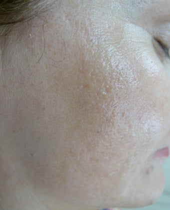 Erbium and CO2 for acne scars after 1520707