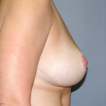 40 year old woman treated with Breast Reduction after 3042837
