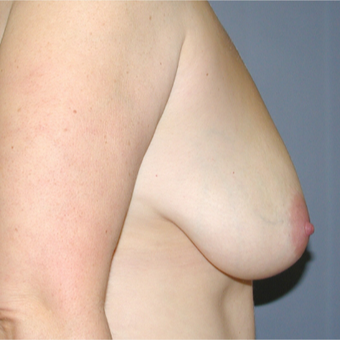 40 year old woman treated with Breast Reduction before 3042837