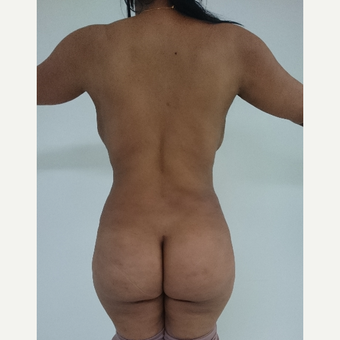 25-34 year old woman treated with Brazilian Butt Lift after 3411014