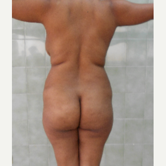 25-34 year old woman treated with Brazilian Butt Lift before 3411014