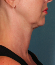 45-54 year old woman treated with Kybella before 2092895