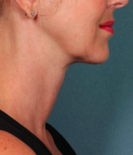 45-54 year old woman treated with Kybella after 2092895