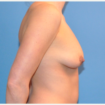 Breast Lift and Augmentation before 3070508