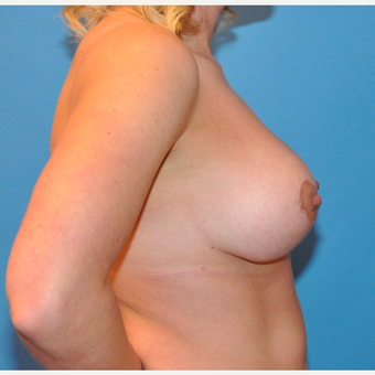 Breast Lift and Augmentation after 3070508