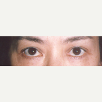 45-54 year old woman treated with Eyelid Surgery before 3544752