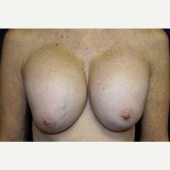 55-64 year old woman treated with Breast Implant Removal before 2519221