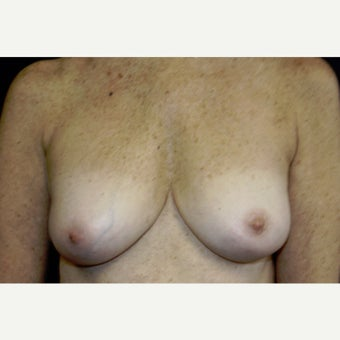 55-64 year old woman treated with Breast Implant Removal after 2519221