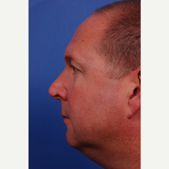 45-54 year old man treated with Rhinoplasty before 3180145